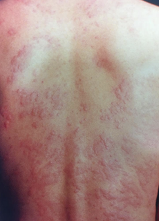 かゆみ 帯状 だけ 疱疹 帯状疱疹でかゆいだけで痛みがないこともあるの?そのかゆみはどうやって治すの?